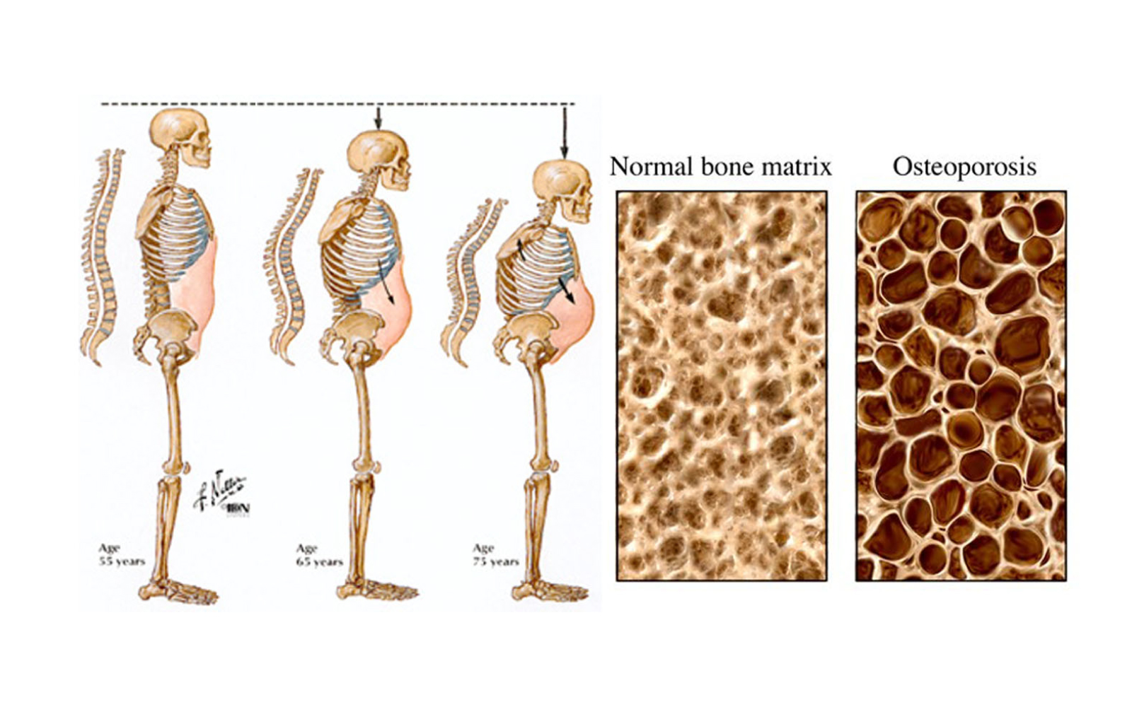 Osteoporosis linked to poor telomerase activity | Recharge Biomedical